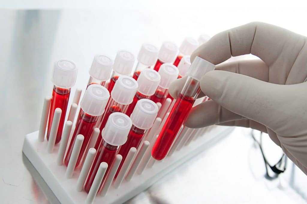 Анализ крови во время месячных