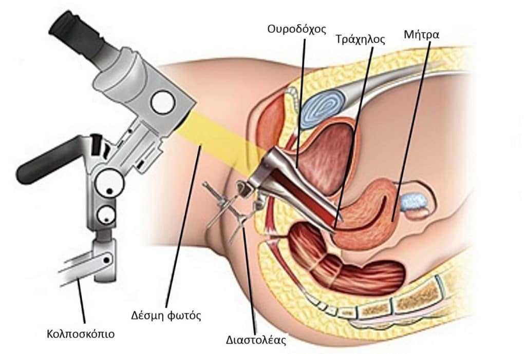 Кульдоцентез проводится под анестезией