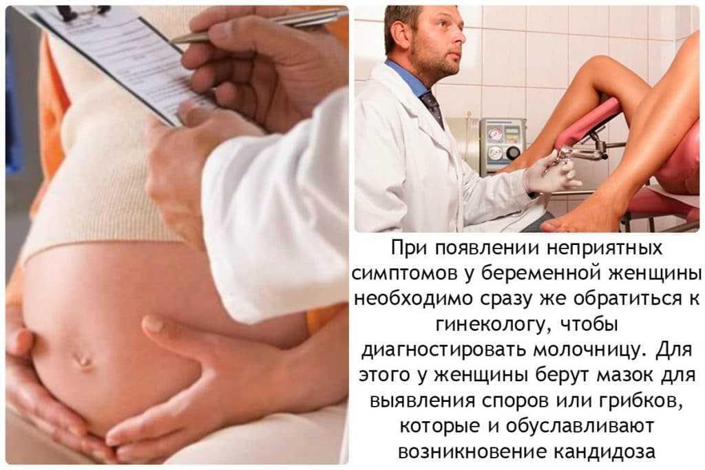 Молочница у беременных без выделений