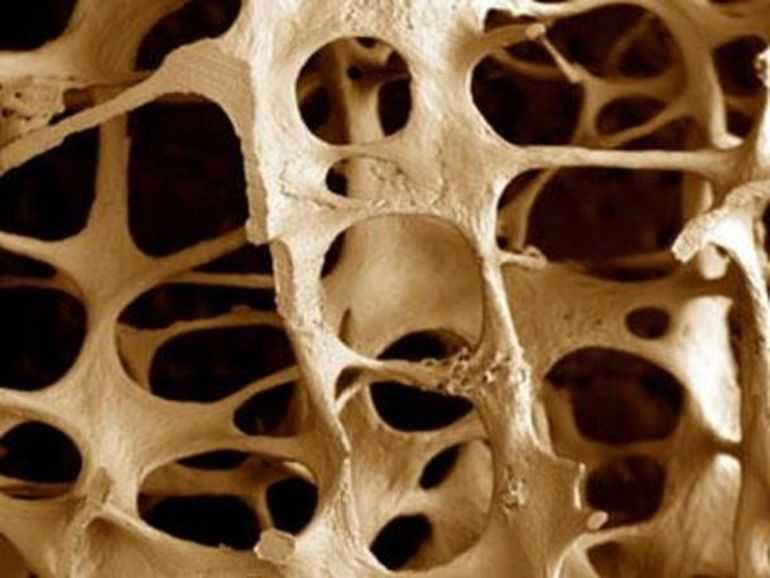 костная ткань начинает истончаться
