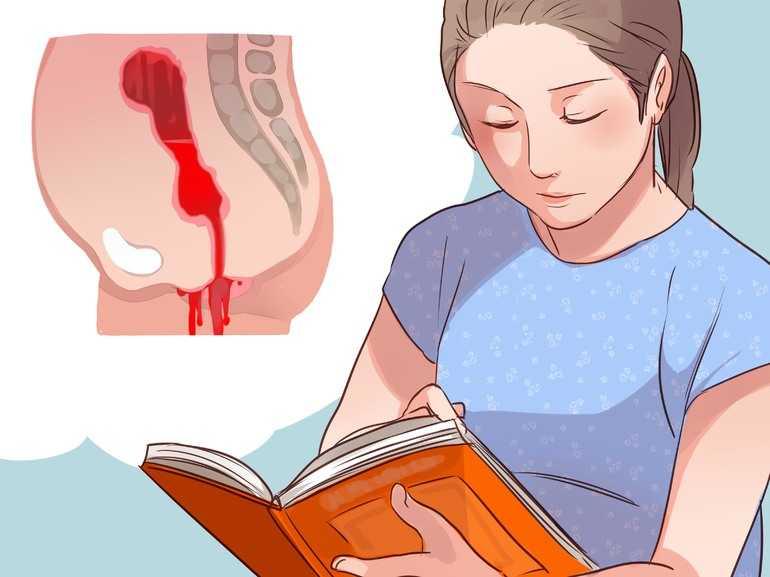 Менструальная кровь: причины появления