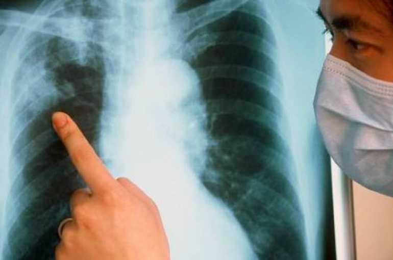 Можно ли снимать рентген при месячных