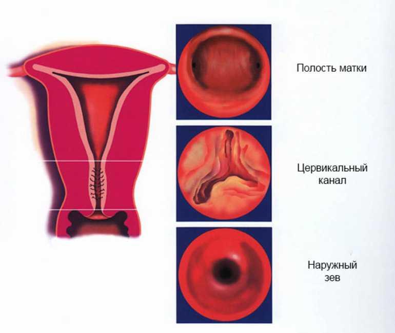 Причины расширения и лечение