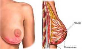 рисунок молочной железы