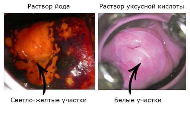 Можно ли делать кольпоскопию во время месячных