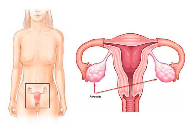 Резистентные яичники