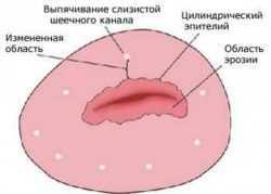 Эрозированный эктропион шейки матки