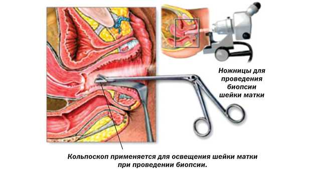 Электроконизация шейки матки при дисплазии 3 степени 40