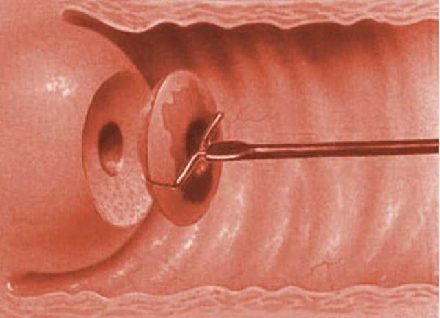 Электроконизация шейки матки при дисплазии 3 степени 45