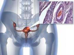 Восстановление после лучевой терапии рака шейки матки