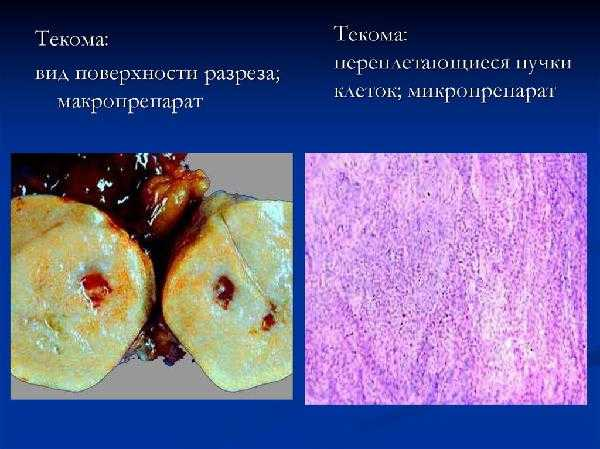 Текома: опухоль яичника