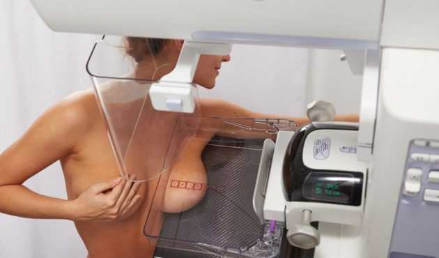 На какой день цикла делать маммографию