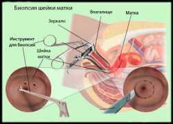 Что такое радиоволновой метод деструкции шейки матки