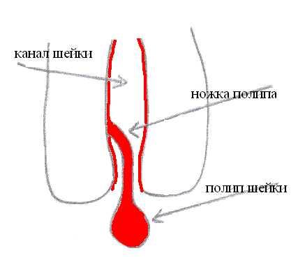 Лечение молочницы Нистатином