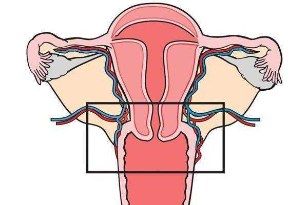 Электроконизация шейки матки при дисплазии 3 степени 43