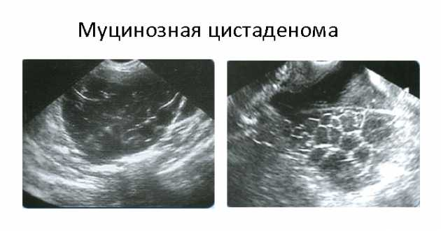 Киста (правого, левого) яичника: лечение, последствия, фото
