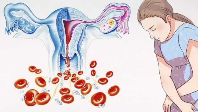 Как уменьшить кровотечение при месячных