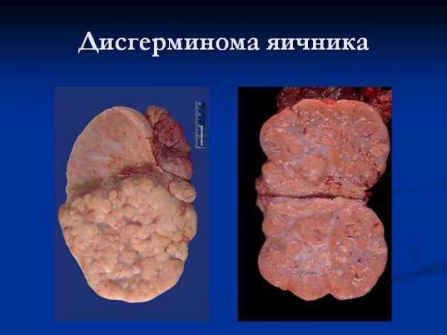 Дисгерминома яичника