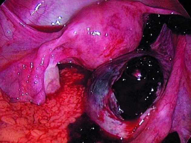Геморрагическая киста яичника