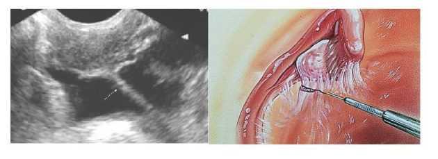 Спайки яичников: симптомы и лечение