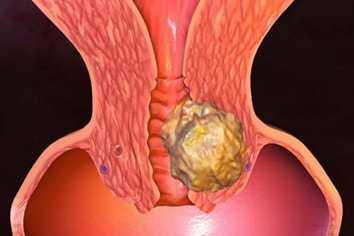 Гиперплазия яичника в менопаузе