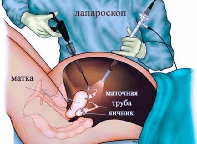 Лапароскопия яичников (удаление кисты)