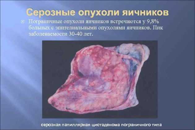 Злокачественные и доброкачественные опухоли яичников
