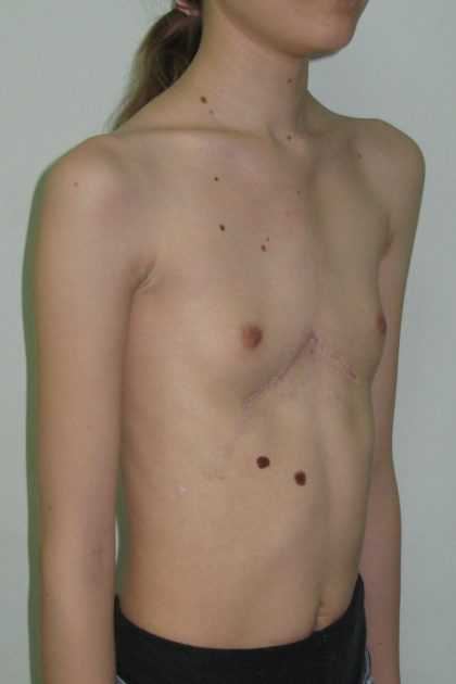 Гипоплазия яичников у женщин