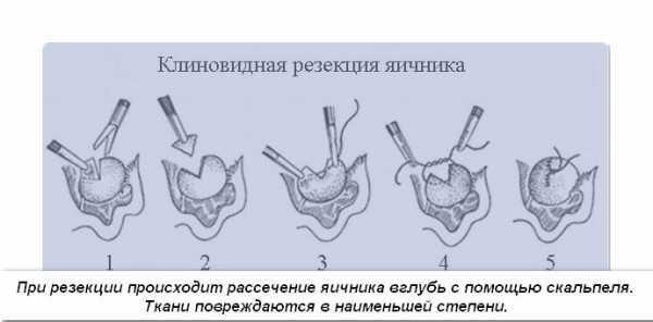 Синдром склерокистозных яичников