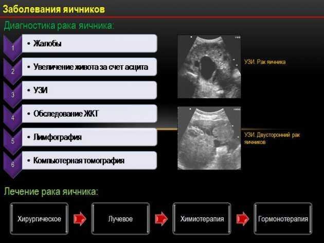 Муцинозная и серозная папиллярная цистаденокарцинома яичника