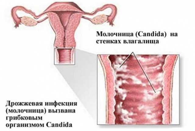 Бетадин при молочнице у женщин
