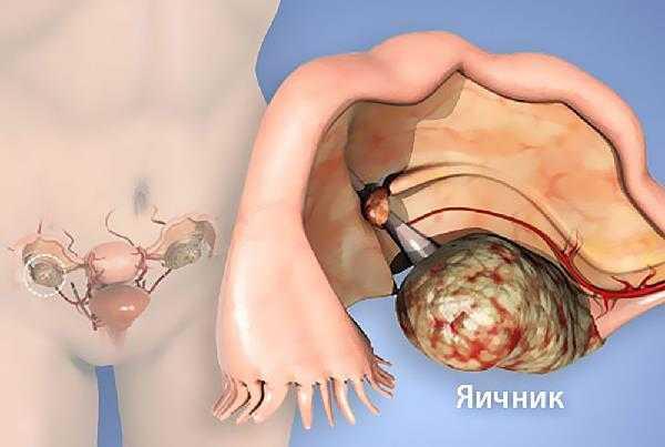 Почему болят яичники