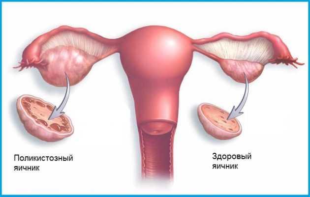 Гипофункция яичников у женщин