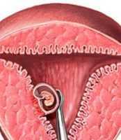 Что такое чистка в гинекологии