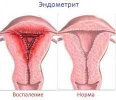 Признаки эндометрита