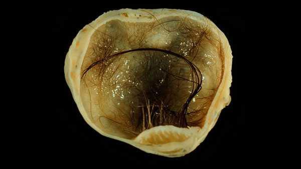 Тератома яичника: что это такое у женщин