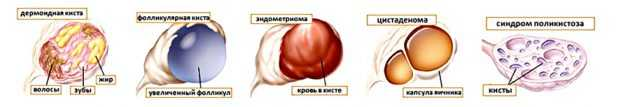 Какие размеры кисты яичника считаются большими