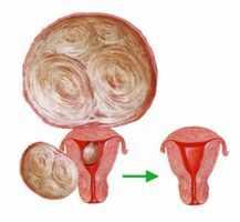 Симптомы миомы матки на ранних стадиях