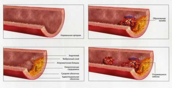 Развитие тромбофилии в артерии нижней конечности