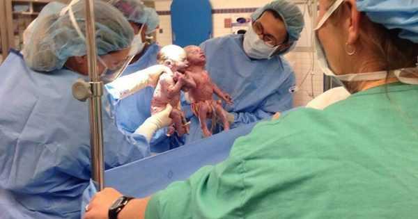 Двух младенцев извлекли путём кесарева сечения