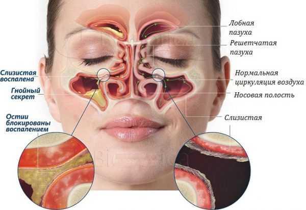 Рисунок, показывающий структуру придаточных пазух и их состояние при синусите