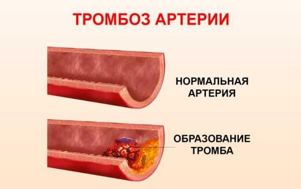 Изображение нормальной артерии и сосуда при повышенном тромбообразовании