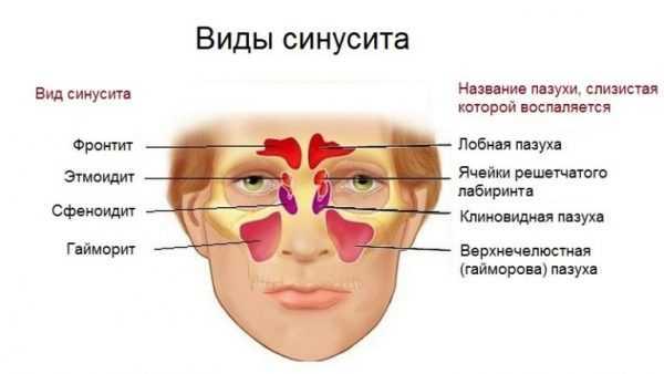 Схема, объясняющая разновидности синусита