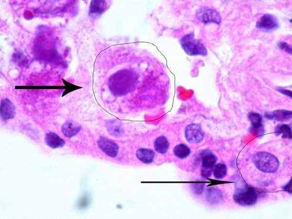 Клетки, поражённые цитомегаловирусом