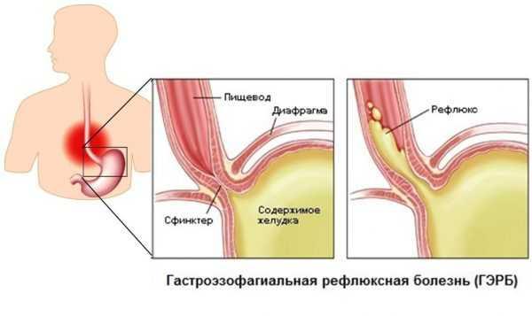 Гастроэзофагеальная рефлюксная болезнь схематически