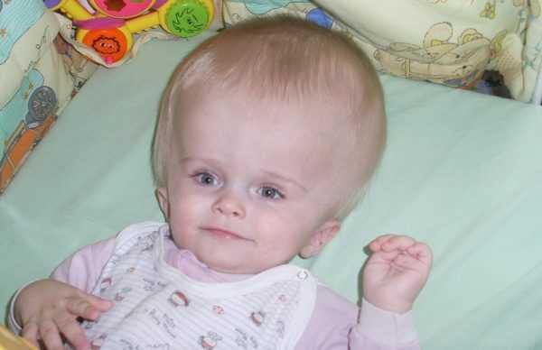младенец с гидроцефалией