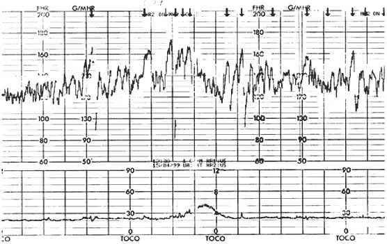 График с сальтаторным ритмом