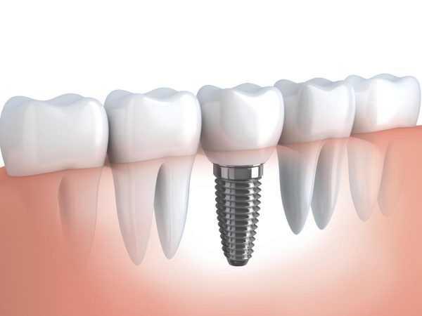 Имплантация зубов на рисунке