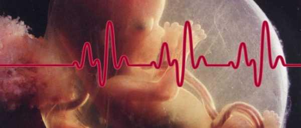 Изображение плода в околоплодном пузыре с линией сердечного ритма на переднем плане