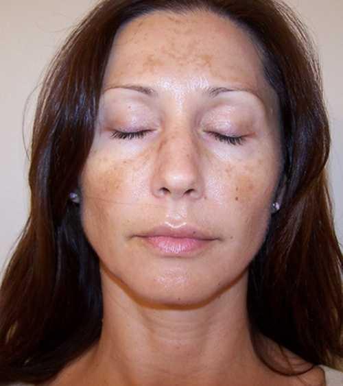 Как выглядят пигментные пятна на лице беременной женщины